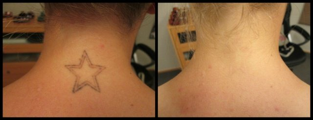 neck tattoo before and after