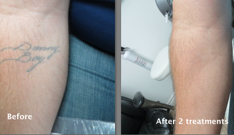 Best Tattoo Removal Lexington KY | Laser Tattoo Removal