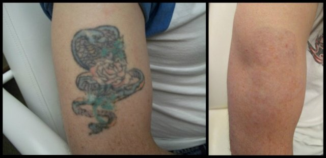 before and after bicep